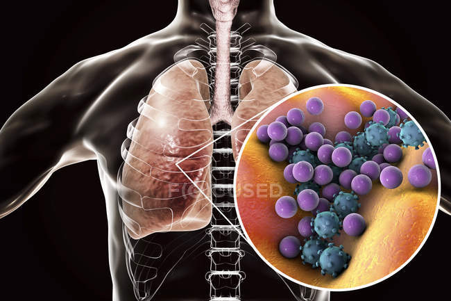 Human lungs with pneumonia and close-up of bacteria and viruses. — Stock Photo