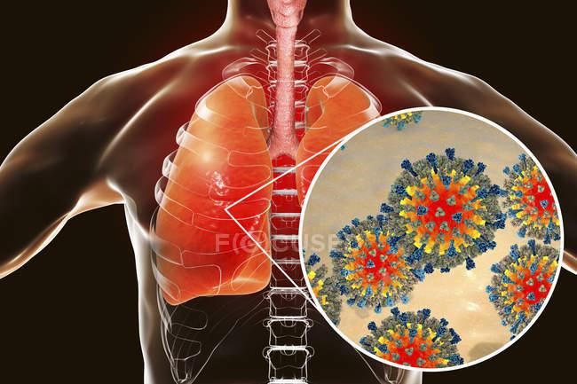 Silhouette polmonare causata da virus del morbillo, illustrazione concettuale . — Foto stock