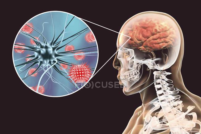 Ilustración conceptual del cerebro humano con signos de encefalitis viral y primer plano de partículas virales . - foto de stock