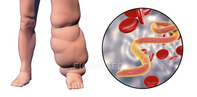 Ilustración digital de la pierna humana afectada por filariasis linfática y primer plano del parásito gusano microfilaria . - foto de stock