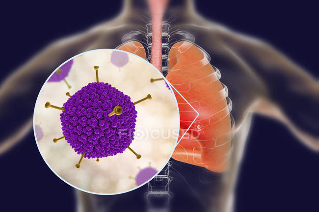 Close-up of adenovirus infecting human lungs, digital illustration. — Stock Photo