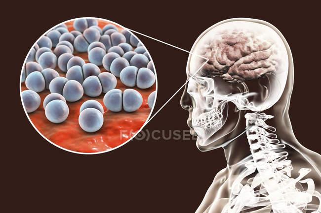 Infecção cerebral causada por bactérias Streptococcus pneumoniae, ilustração digital . — Fotografia de Stock
