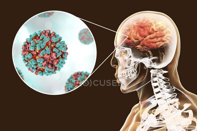 Virus de la encefalitis equina venezolana infectando el cerebro humano, ilustración digital . - foto de stock