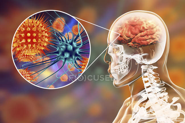 Conceptual illustration of human brain with signs of viral encephalitis and close-up of virus particles. — Stock Photo