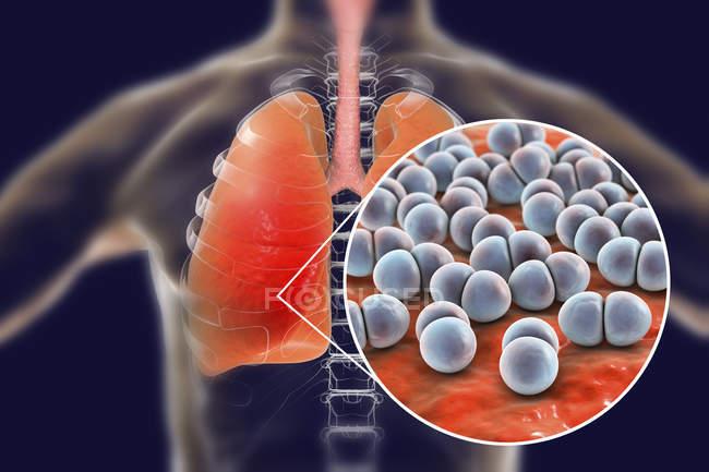 Pneumonia caused by Streptococcus pneumoniae bacteria, conceptual illustration. — Stock Photo