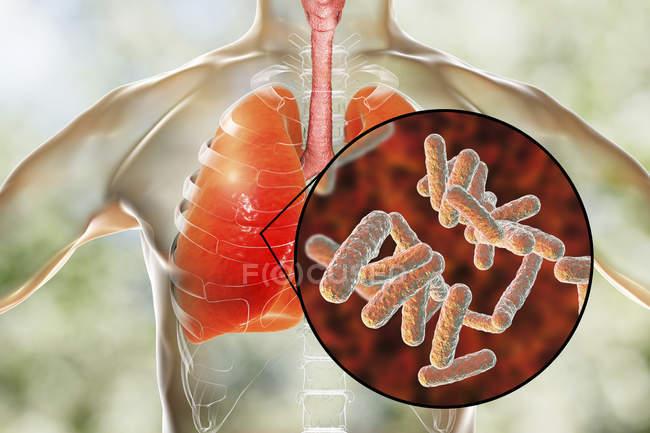 Polmoni umani con polmonite batterica e primo piano dei batteri . — Foto stock
