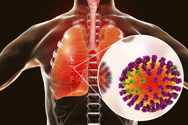Human silhouette with lungs infected by pneumonia caused by flu, illustration. — Stock Photo