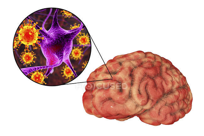 Conceptual illustration of brain with signs of viral encephalitis and close-up of virions. — Stock Photo