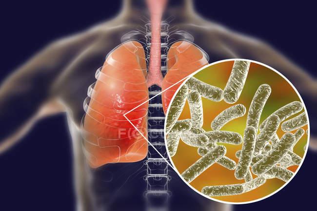 Pulmões com doença de Legionários e close-up de bactérias Legionella pneumophila, ilustração conceitual . — Fotografia de Stock