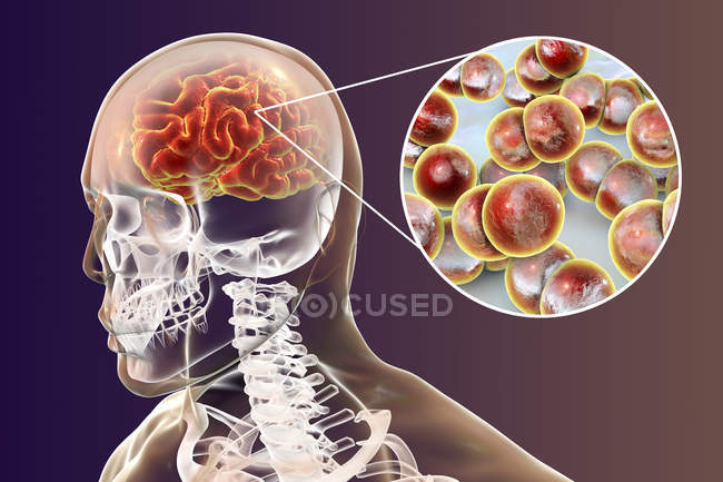 Infección cerebral Neisseria meningitidis, ilustración digital . - foto de stock