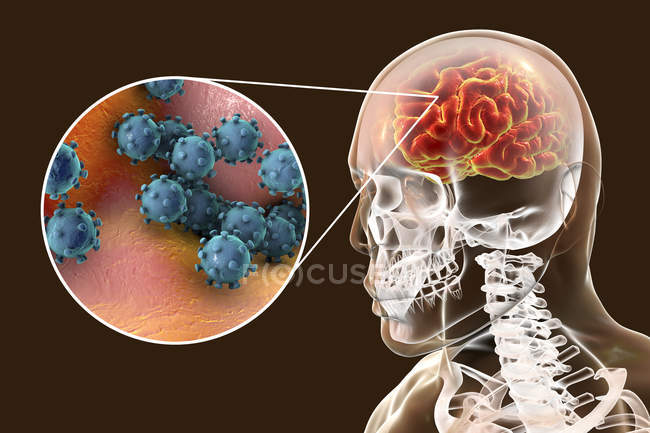 Illustration conceptuelle du cerveau humain présentant des signes d'encéphalite virale et un gros plan sur les particules virales . — Photo de stock