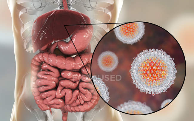 Illustration numérique de silhouette avec foie et gros plan des particules du virus de l'hépatite C . — Photo de stock