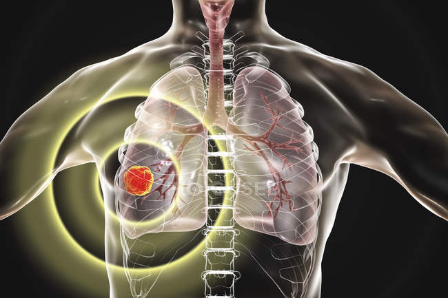 Human silhouette showing lung cancer tumor, conceptual illustration. — Stock Photo