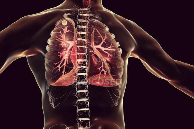 Illustration numérique du nœud solide dans le poumon droit près de l'apex pulmonaire pendant l'infection tuberculeuse secondaire . — Photo de stock