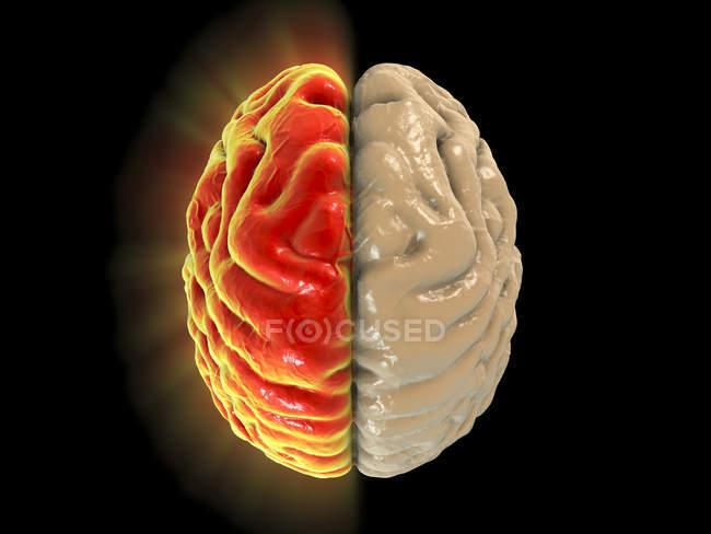 Ilustración digital conceptual del cerebro con área coloreada con migraña . - foto de stock