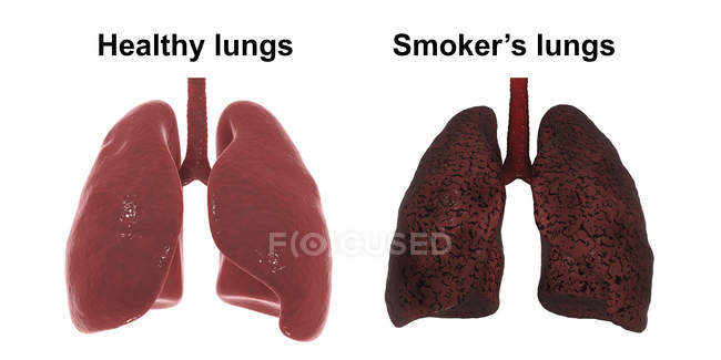 Comparison of healthy and smoker lungs, digital illustration. — Stock Photo