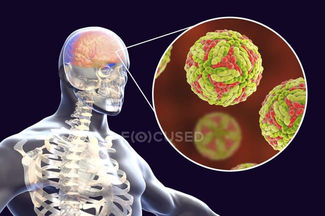Encefalite giapponese del cervello umano, illustrazione digitale . — Foto stock