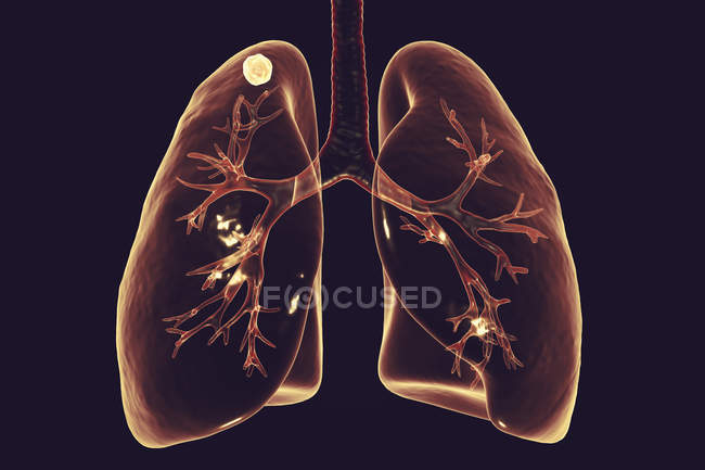 Digital illustration of solid node in right lung near lung apex while secondary tuberculosis infection. — Stock Photo