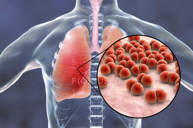 Pneumonia caused by Streptococcus pneumoniae bacteria, conceptual illustration. — Stock Photo