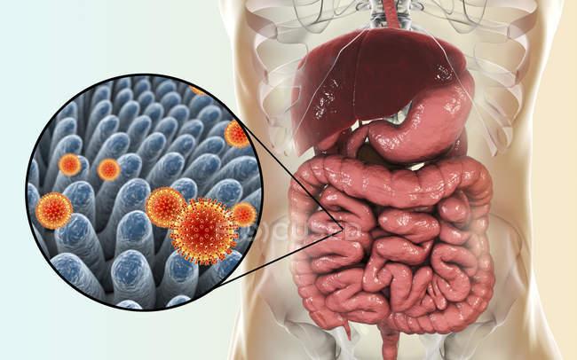 Particules de rotavirus infectant l'intestin humain, illustration numérique . — Photo de stock