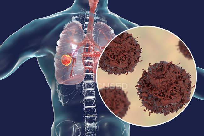 Ilustração digital de tumor canceroso nos pulmões e close-up de células de câncer de pulmão . — Fotografia de Stock