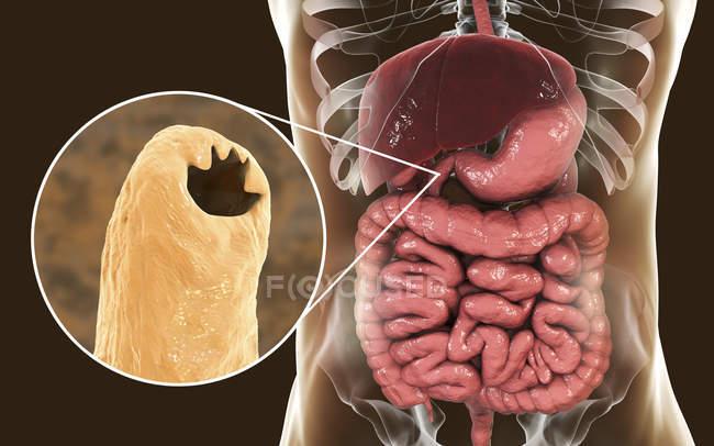 Цифровая иллюстрация головы паразитического червя Ancylostoma duodenale в тонком кишечнике . — стоковое фото