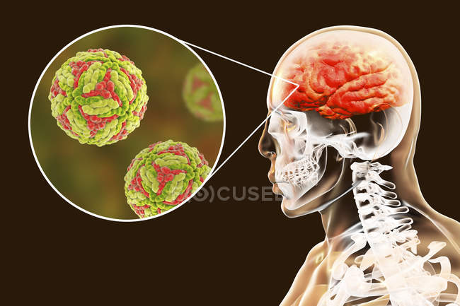 Encéphalite japonaise du cerveau humain, illustration numérique . — Photo de stock