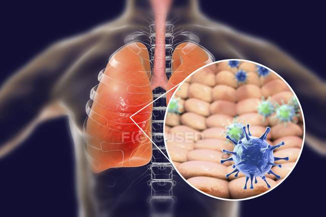 Polmoni umani con polmonite virale e primo piano delle virioni . — Foto stock
