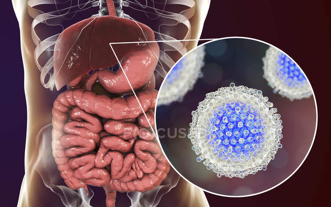 Digital artwork of silhouette with liver and close-up of hepatitis C virus particles. — Stock Photo