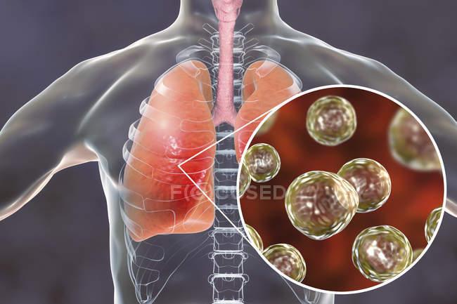 Silhouette umana con polmoni infetti da blastomicosi polmonare e primo piano delle particelle di fungo Blastomyces dermatitidis . — Foto stock