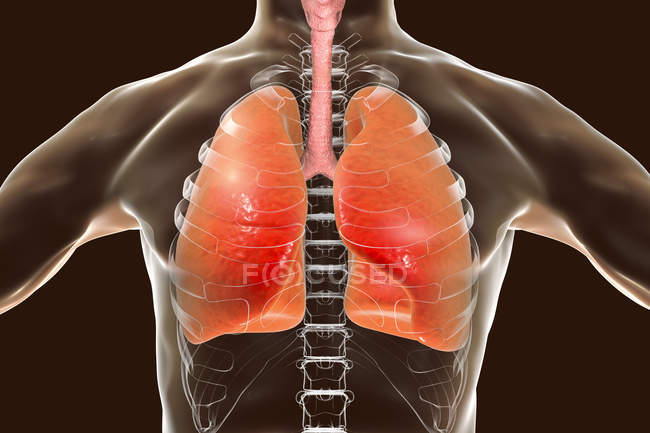 Human silhouette with detailed lungs, digital illustration. — Stock Photo