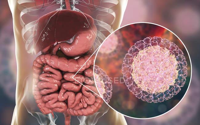 Partículas de rotavirus que infectan el intestino humano, ilustraciones digitales . - foto de stock