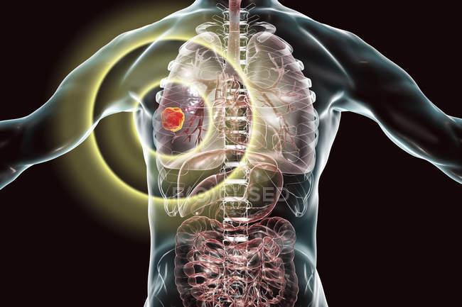 Silhouette umana che mostra il tumore del cancro al polmone, illustrazione concettuale . — Foto stock