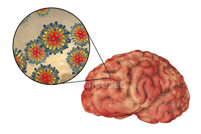Encefalite do cérebro humano causada pelo enterovírus do sarampo, ilustração conceptual . — Fotografia de Stock