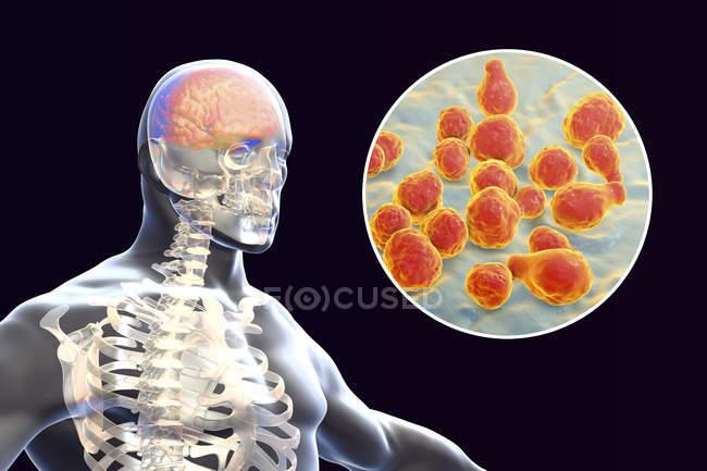 Meningitis en el cerebro causada por hongos, ilustración digital . - foto de stock