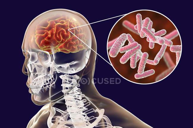 Ilustración conceptual del cerebro con signos de encefalitis bacteriana y primer plano de bacterias . - foto de stock