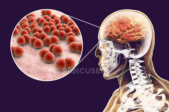 Brain infection caused by Streptococcus pneumoniae bacteria, digital illustration. — Stock Photo