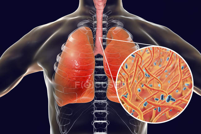 Whooping cough contagious infectious lungs disease and close-up of Bordetella pertussis bacteria. — Stock Photo