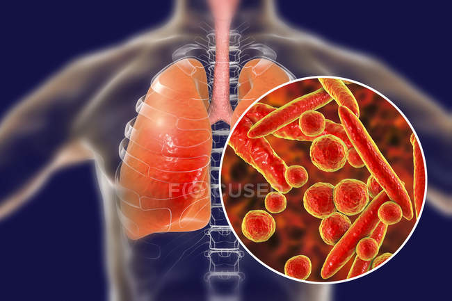 Lungs pneumonia caused by Mycoplasma pneumoniae bacteria, conceptual illustration. — Stock Photo