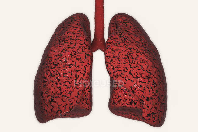 Silhouette of unhealthy smoker lungs, digital illustration. — Stock Photo