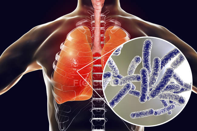 Lungs with Legionnaires disease and close-up of Legionella pneumophila bacteria, conceptual illustration. — Stock Photo