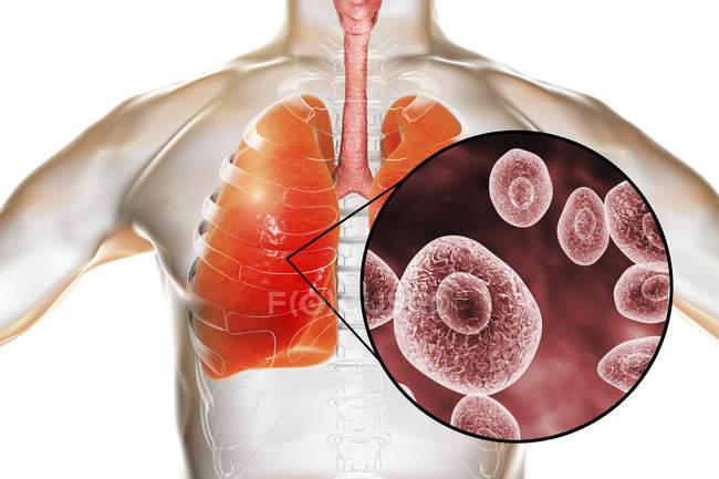 Menschliche Silhouette mit Pneumocystis-Lungenentzündung und Nahaufnahme von Pilzsporen. — Stockfoto