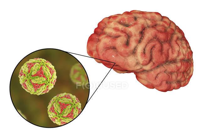 Encefalitis japonesa del cerebro humano, ilustración digital . - foto de stock