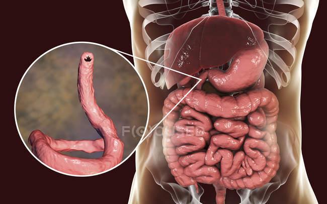 Ilustración digital del anquilostoma parásito Ancylostoma duodenale en el intestino delgado . - foto de stock