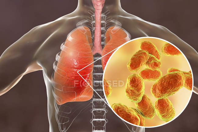 Pneumonia pulmonar e close-up das bactérias Haemophilus influenzae, ilustração digital . — Fotografia de Stock