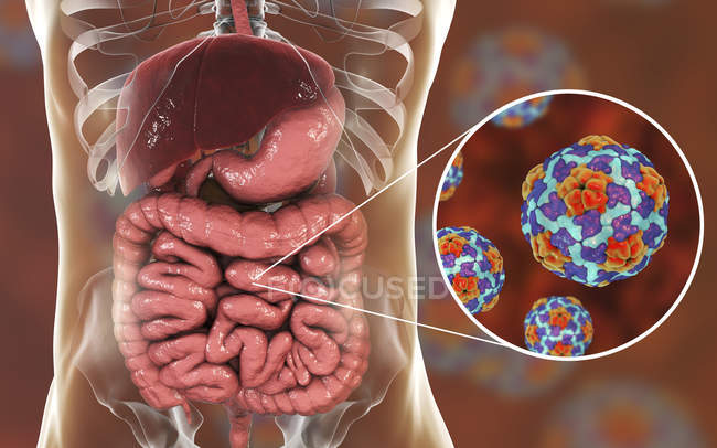Digital illustration of intestine and close-up of hepatitis A virus particles. — Stock Photo