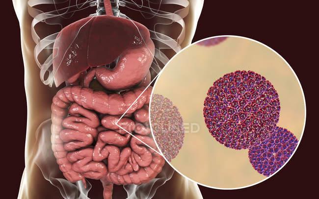 Rotavirus-Partikel, die den menschlichen Darm infizieren, digitale Kunstwerke. — Stockfoto