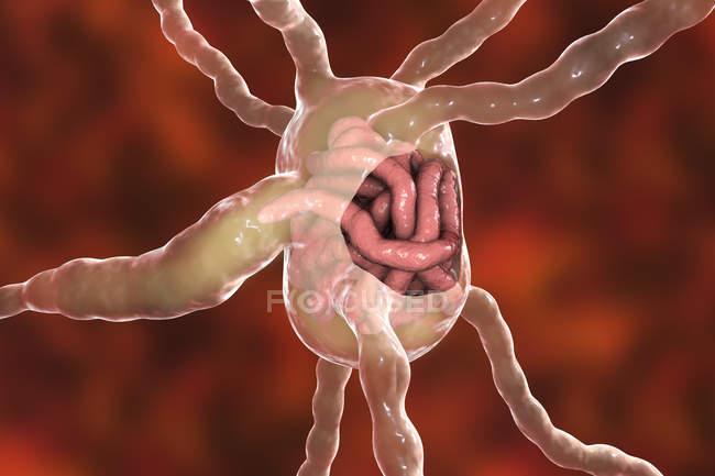 Ganglios linfáticos con gusanos nematodos filaria, ilustración digital - foto de stock