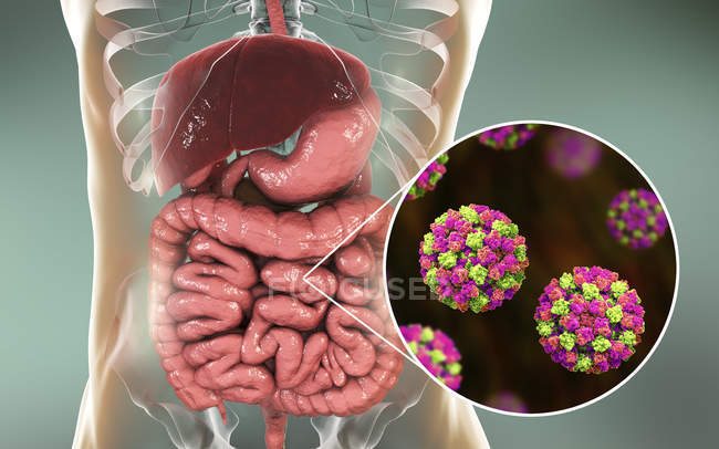 Norovirus infection in small intestine, digital illustration. — Foto stock