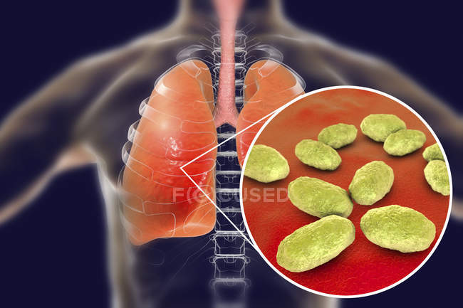 Polmonite polmonare e primo piano dei batteri Haemophilus influenzae, illustrazione digitale . — Foto stock